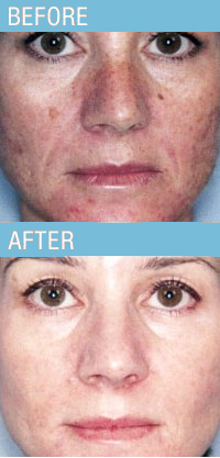 Photo Facial Evelinecharles Salons Spas Beauty Md
