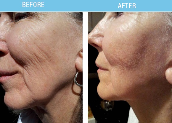 PRP Vampire Facelift - EvelineCharles Hair Salons and Day Spas